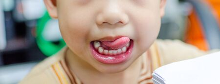 asian kid showing tongue and tooth.