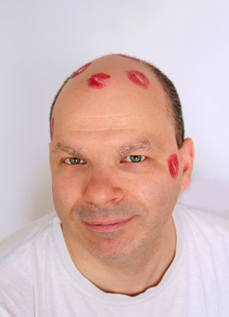 Young man with lipstick kisses marks on bald head photo