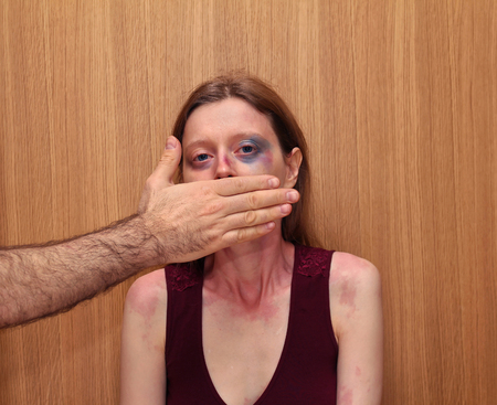 mujer golpeada: Golpeado mujer con moretones en la cara y la mano masculina que cubre la boca