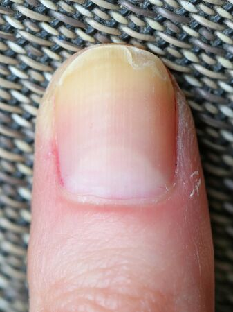 Dry cuticles with yellow brittle splitting peeling nail Reklamní fotografie
