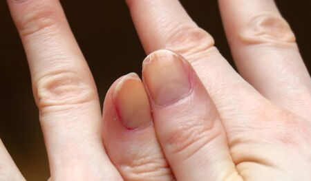 Cracked fingernails with brittle splitting and peeling nails