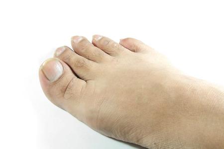 unsightly: unattractive foot