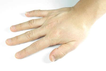 unattractive: unattractive hand Stock Photo