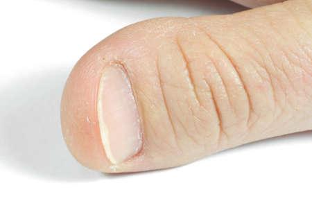 unattractive: unattractive thumb