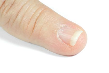 unattractive: unattractive little finger
