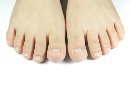 unsightly: unattractive feet