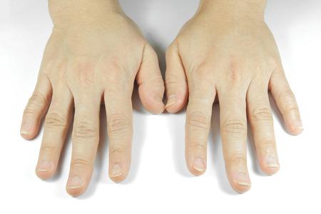 unsightly: unattractive hands Stock Photo