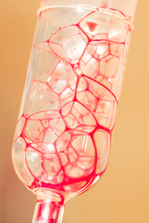 Blood in glass tube for patient, selective focus point