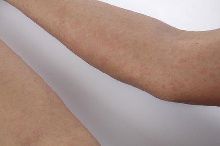 congenital: Man with dermatitis problem of rash ,Allergy rash