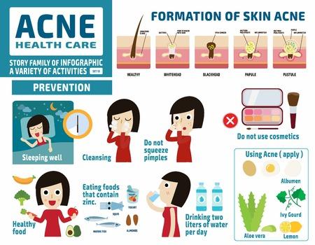 L'acné et les soins de protect.health elements.flat concept.infographic mignon de bande dessinée illustration de conception. Banque d'images - 53903244
