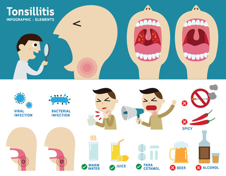pharynx: tonsillitis infographic element.flat vector cartoon design illustration.health care concept.