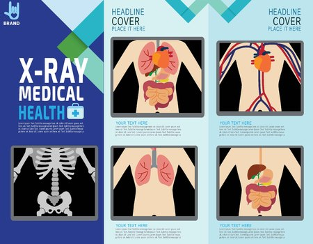 bowel surgery: X-ray screen showing internal organs and skeleton.human body systems. digestive. infographic element.health concept. vector flat cartoon design  illustration.brochure template layout.