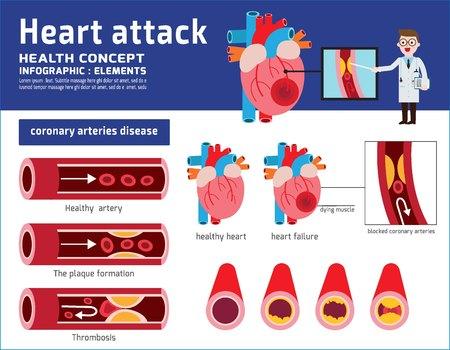 Infografika zawału serca. Ilustracja medyczny miażdżycy. Koncepcja opieki zdrowotnej. Zdrowe i uszkodzone serce. Sekcja naczynia krwionośnego z nagromadzeniem złogów tłuszczowych. Projekt płaski kreskówka wektor ikona