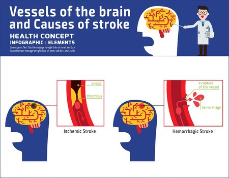 Vessels of the brain and causes of stroke infographic disease medical illustration. Banner header healthcare concept vector icon flat cartoon design isolated on white background.