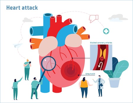 Heart attack infographic.Atherosclerosis medical banner.Healthcare concept.Miniature doctor nurse team andobese patient vector illustration.Blood vessel section with fatty deposit accumulation