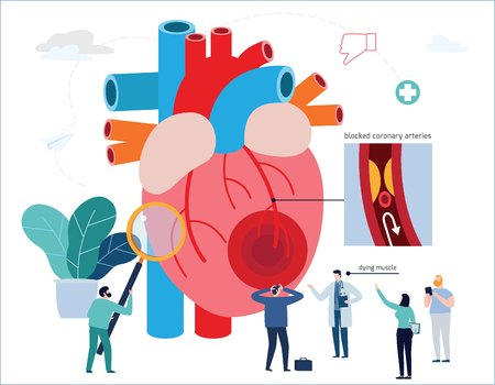 Heart attack infographic. Atherosclerosis medical vector illustration. Vectores