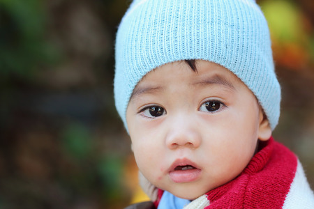 the sick: Asian boy was sick and runny nose, close up Stock Photo