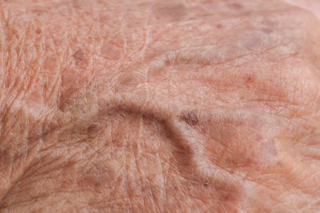 phalanges: old woman skin blood vessel