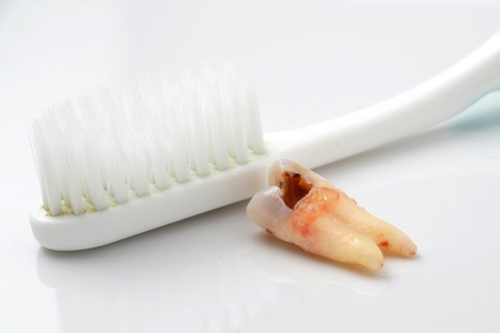 prophylactic: teeth Caries on white background