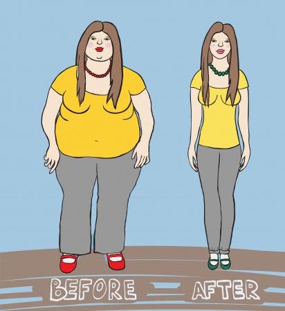 obesidad: Ilustración de una mujer antes de después de la dieta