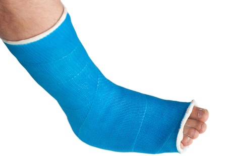 leg injury: broken leg in a plaster cast isolated on white Stock Photo