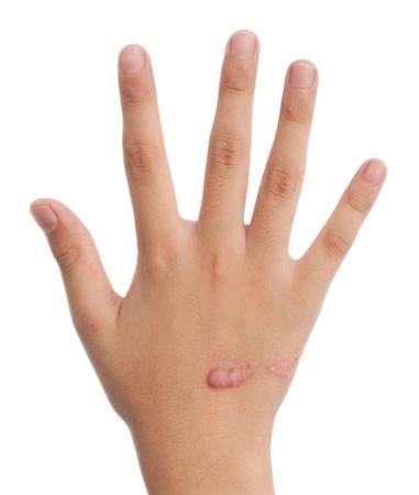 mani del bambino con cicatrice isolato su bianco