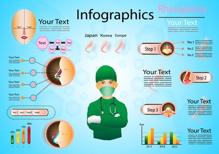 nostril: infographics of rhinoplasty Illustration