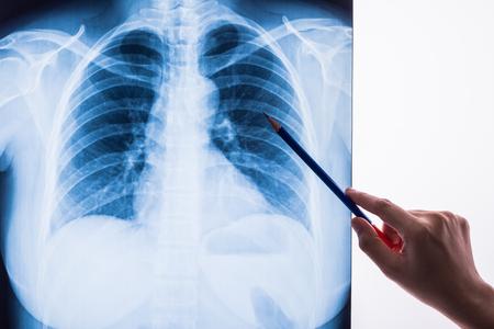 zwart-wit X-ray Afbeelding van een menselijke kist voor een medische diagnose Stockfoto