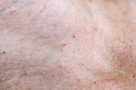 Skin pigmentation. Moles and freckles. Health and medicine