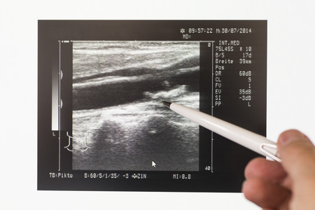 diagnoses: Ultrasonic scan of carotid