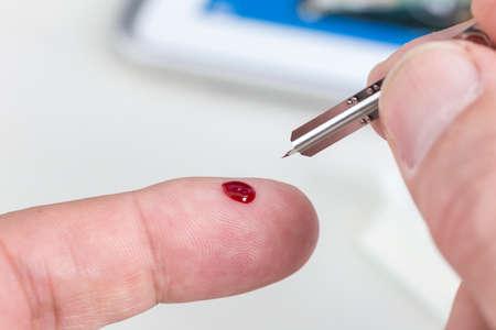 blood sugar: Man measuring blood sugar with lancing device