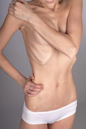 anorexia: Anorectic woman, waist up