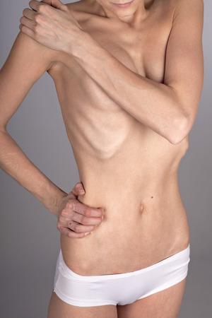 waist up: Anorectic woman, waist up