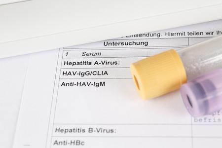 laboratory test: Laboratory test, Hepatitis C, blood tubes on paper