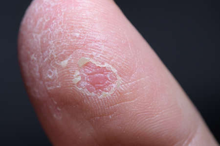 Macro shot of a thumb finger with eczema. Extremely dry skin dermatological situation.