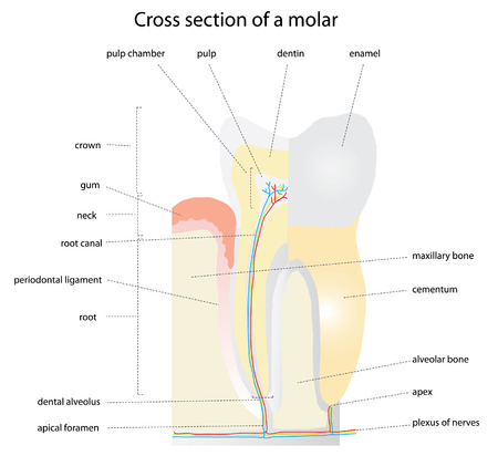 karies: Cross section of a tooth (molar). Instructions are removable Illustration