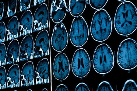 mri scan: research in medicine  CT scan of the patient