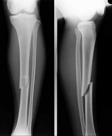 x-ray image show fracture both bone of leg and fracture shaft of ulnar of forearm