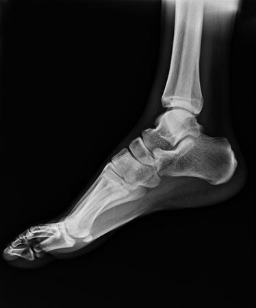 pies masculinos: radiograf�a del pie Foto de archivo