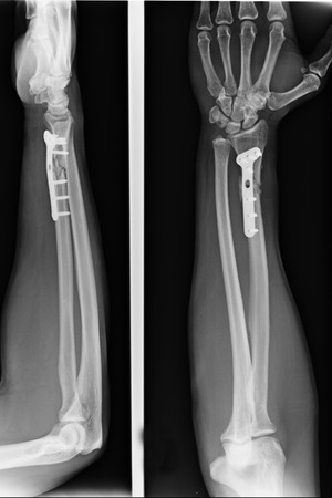 x rays negative: X-ray view of elbow Stock Photo