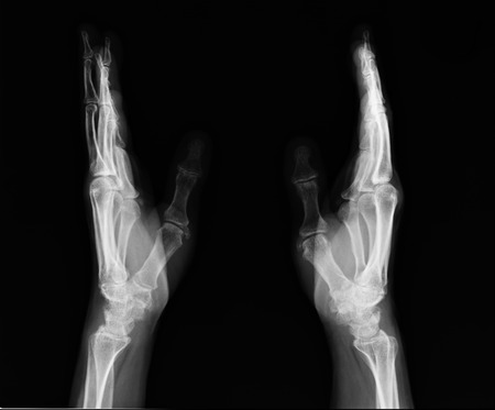 X-ray hand images photo