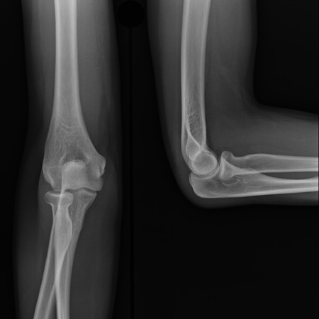 X-ray view of elbow photo