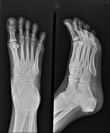broken foot: x-ray of foot