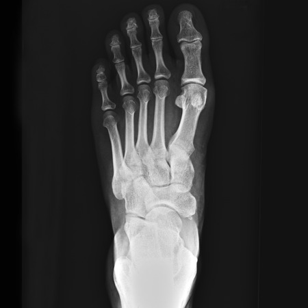 x-ray of foot photo