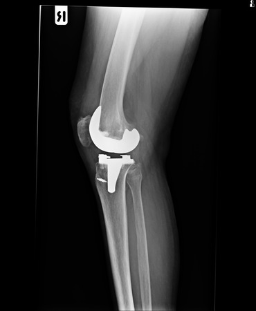 knee and knee with total replacement x-ray image photo