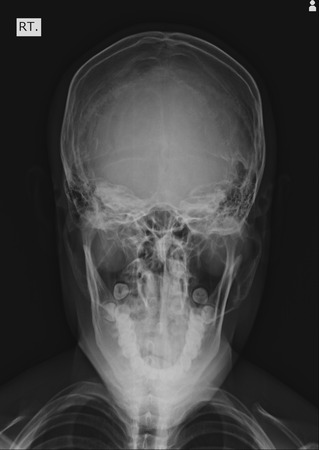 Front face skull x-ray image photo