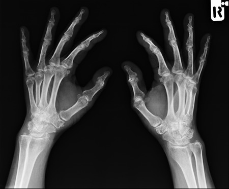 thumb x ray: X-ray hand images