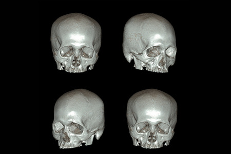 ct scan: X-ray image of the skull computed tomography 3D