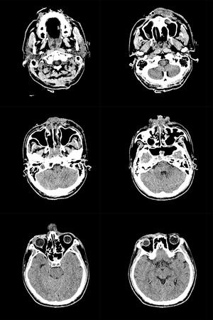tomography: Series of images from a computerized tomography of the brain