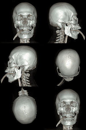 X-ray image of the skull computed tomography 3D photo